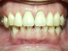 審美歯科 インプラント治療専門歯科医院 藤沢市 柄沢橋歯科 メンテナンス