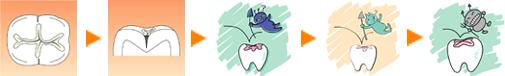 審美歯科 インプラント治療専門歯科医院 藤沢市 柄沢橋歯科 シーラントについて