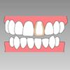 審美歯科 インプラント治療専門歯科医院 藤沢市 柄沢橋歯科 歯の一部分が茶色くなってしまうケース